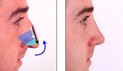 усечение перегородки носа
