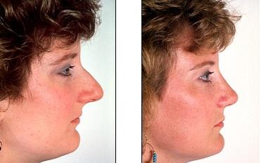 длинный нос сбоку