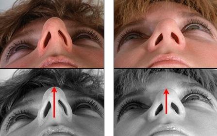 исправление длинного носа