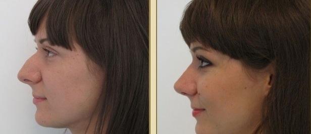большой нос с горбинкой