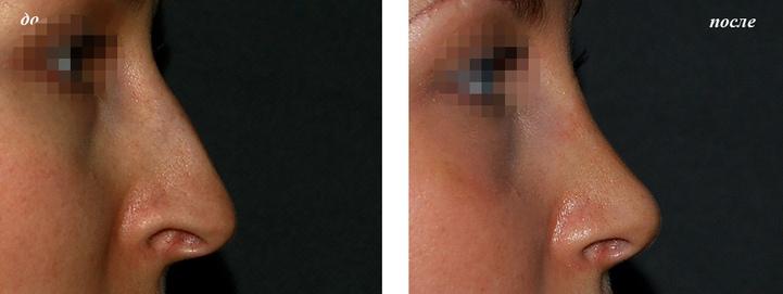 фото до и после большой нос