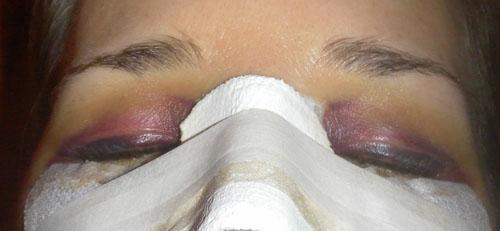 Ринопластика носа картошкой фото до и