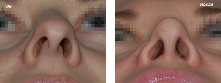 реконструктивная ринопластика фото до и после у Григорянц В.С.