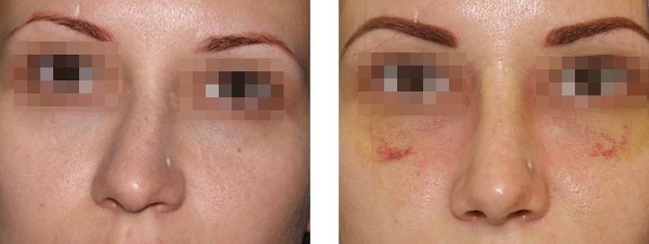 кривой нос до и после
