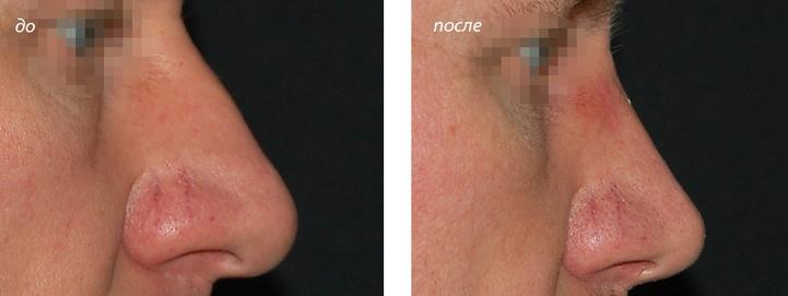 фото до и после септоринопластики у Григорянц В.С.