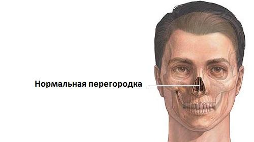 нормальная носовая перегородка