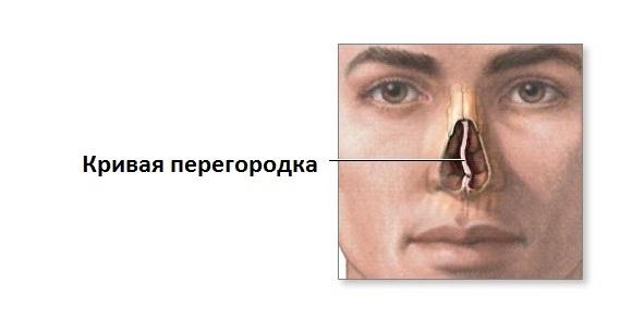 кривая носовая перегородка