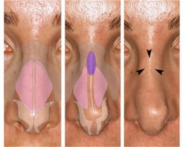 уменьшающая септоринопластика