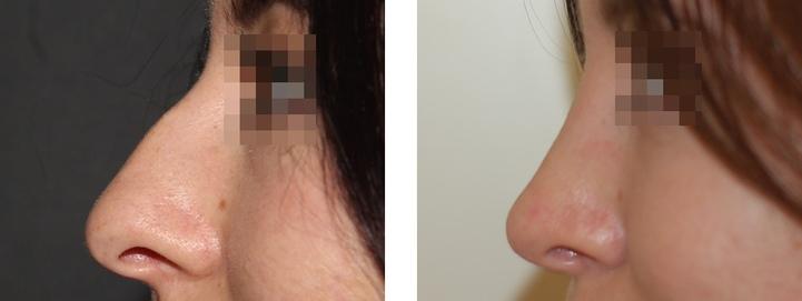 Инъекционная коррекция формы носа цена
