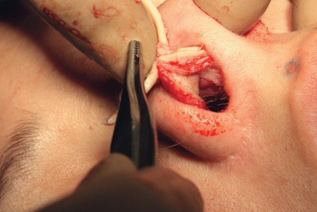 пересадка хрящей в ринопластике
