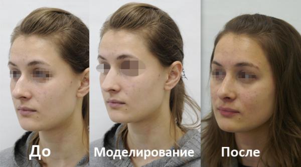 фото до и после моделирования и конечный результат