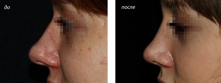 фото до и после ринопластики крыльев носа
