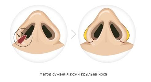 широкие ноздри ринопластика