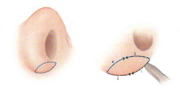 уменьшение широких крыльев носа