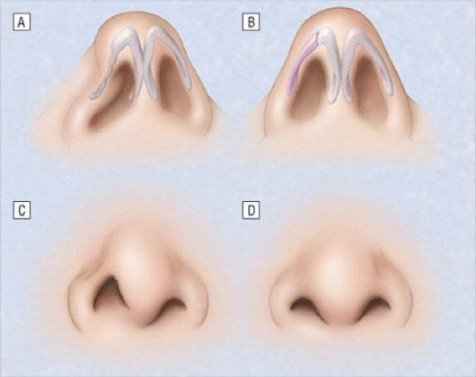 восстановление крыльев носа