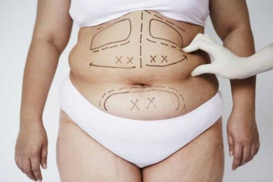 виды операций абдоминопластики