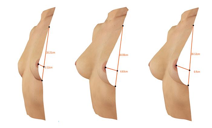 увеличение груди 1 2 размера