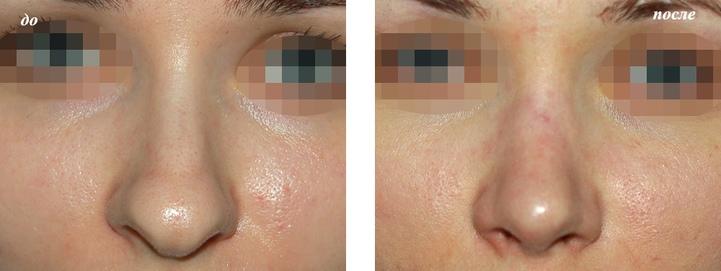 до и после уменьшения кончика носа фото