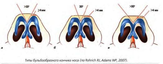 виды бульбообразного носа