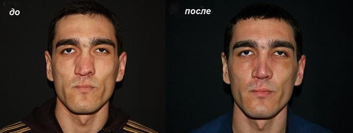 очень кривой нос до и после
