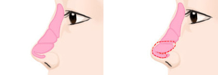 удлинение кончика носа