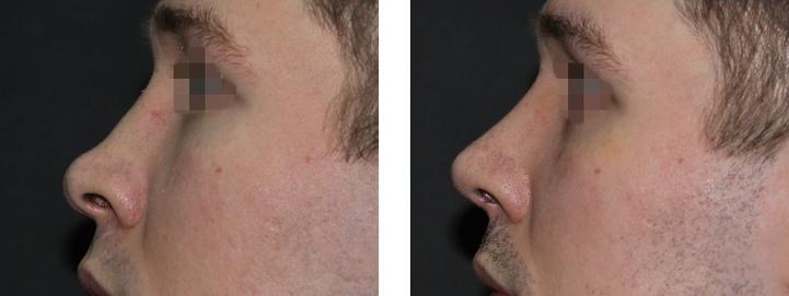 фото до и после ринопластики курносого носа