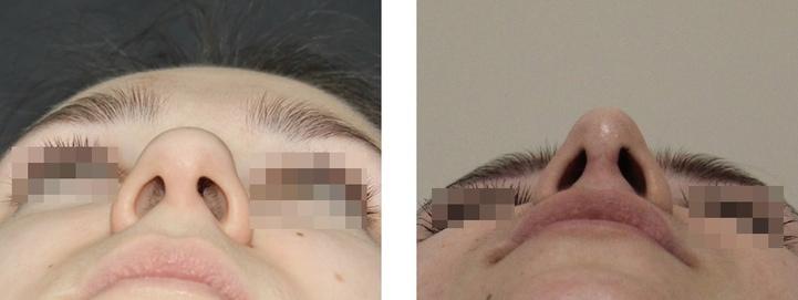 фото до и после ринопластики ноздрей