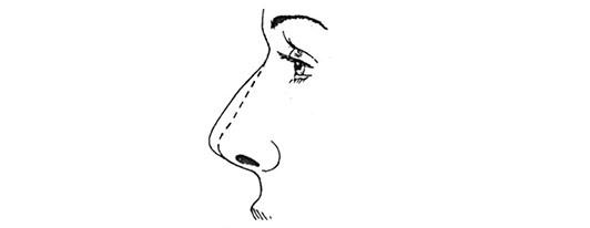 высокая спинка носа
