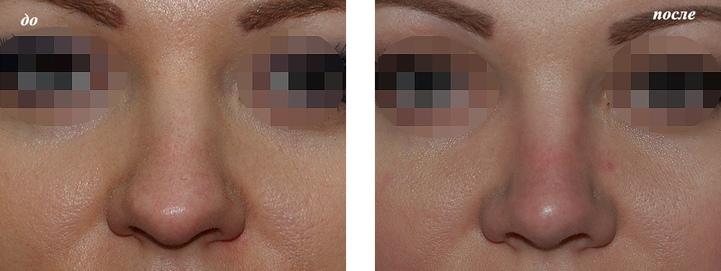 ринопластика широкого носа