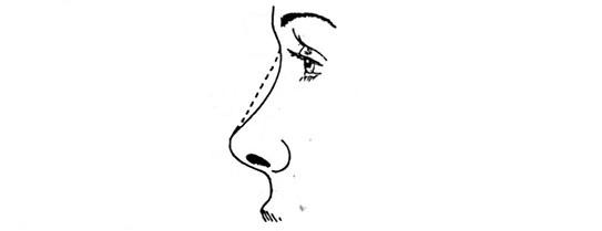 низкая спинка носа