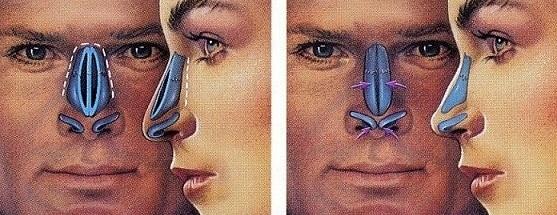 остеотомия носа