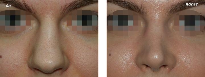 фото до и после ринопластики широкого носа у Григорянц В.С.