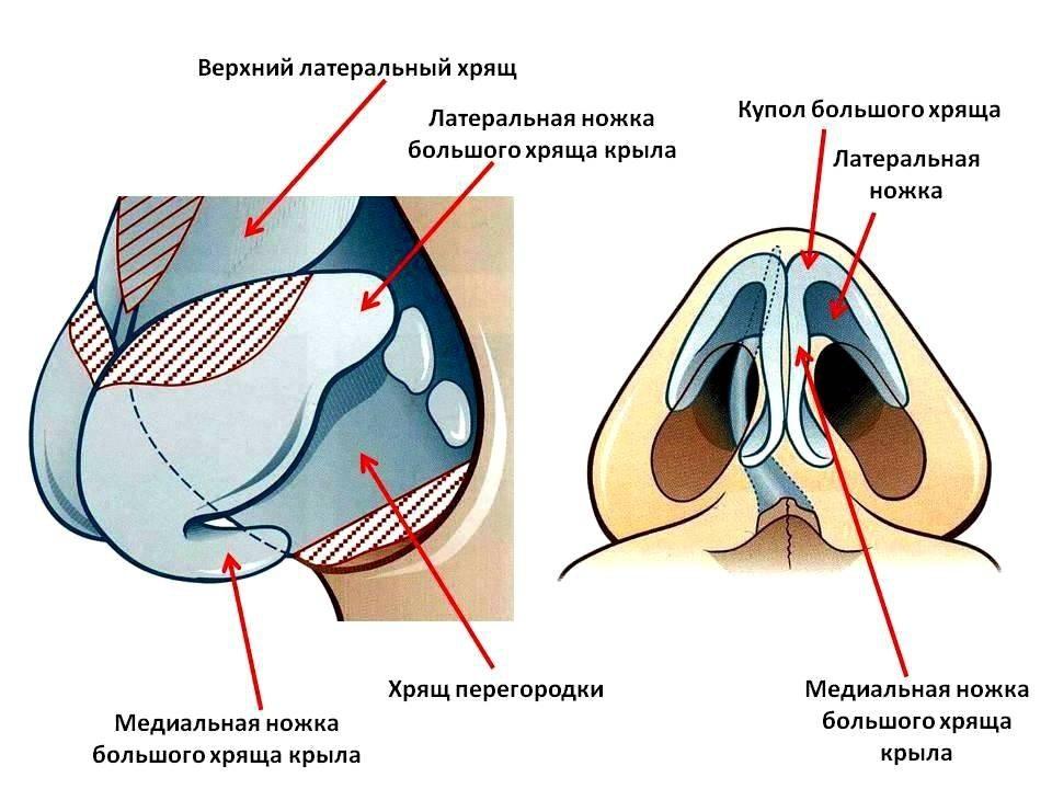 Кончик носа после ринопластики