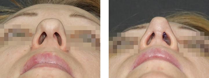 раздвоенный кончик носа до и после