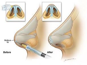 безоперационная коррекция бульбообразного кончика носа