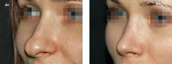 ринопластика кончика носа до и после фото у Григорянц В.С.
