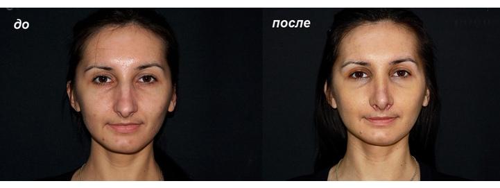 до и после ринопластики опущенного кончика носа