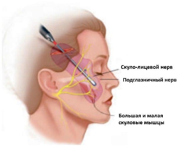 подтяжка средней зоны лица через нижние веки и другие способы