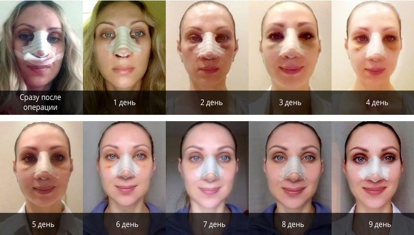 жителей восстановление фото убираем трещины на лицах что нами