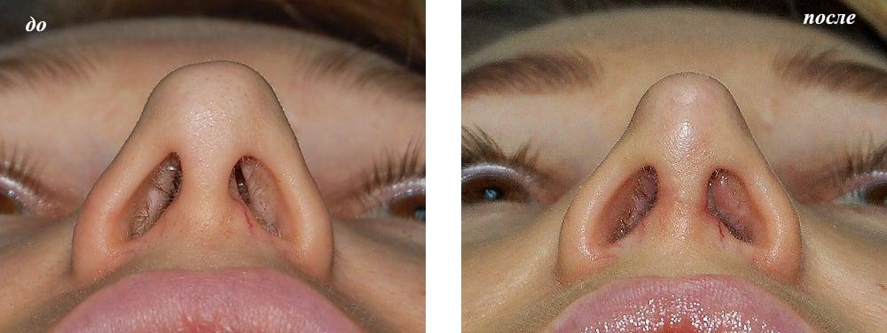 Снять отек слизистой носа в домашних условиях 152