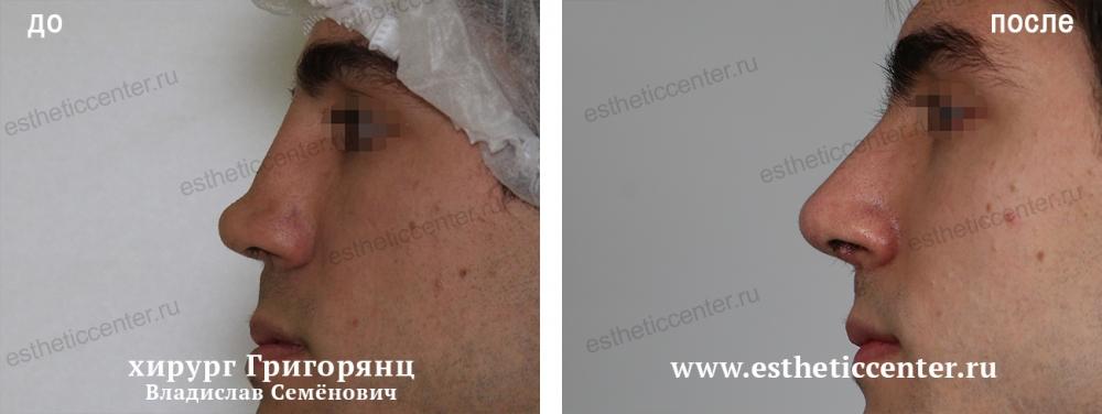 штамма денис гусев фото до и после ринопластики данном случае