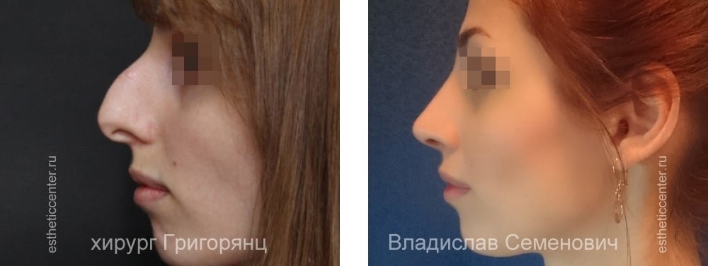 Как сделать себе нос с горбинкой 238